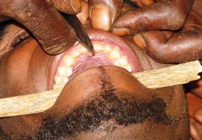 Teeth_filling